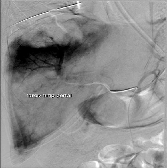 Arteriografie hepatica selectiva
